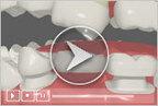 Dental Bridges Lafayette LA - Cosmetic Dentist Lafayette LA | Invisalign Lafayette LA -  Dentist Lafayette LA | Scoop.it