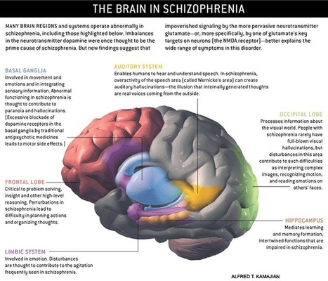 schizophrenia_brain_large.gif (700x600 pixels) | ps4-5 | Scoop.it