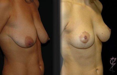 EBS Plastic Surgery : Breast implants in new york city | EBS Plastic Surgery | Scoop.it