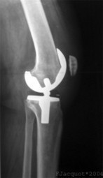 The Benefits and Risks of Knee Replacement Surgery - Personacare Health and Wellness Clinic | Personacare Health and Wellness Clinic | Scoop.it