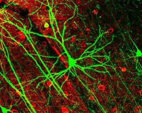 La curiosità sconvolge i neuroni - Biotech - Scienza&Tecnica - ANSA.it   lifestyle, wellness & more   Scoop.it