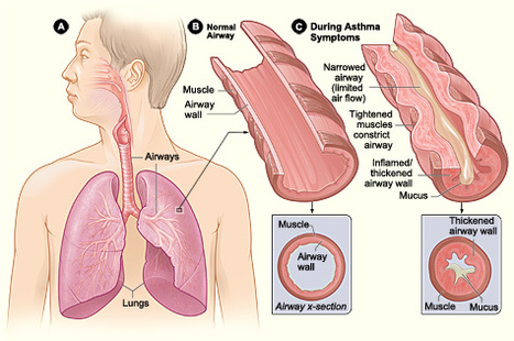 What Is Asthma? | Gabrielle's Yr 9 Journal | Scoop.it