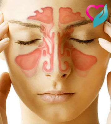 Detecting Sinusitis and 20 Natural Remedies for Treatment | sinusitis | Scoop.it