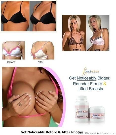 Before and After | Brestrogen is the best natural breast enhancement option – Brestrogen Reviews | Scoop.it