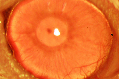 New Way to Regrow Human Corneas Could Help Overcome a Major Cause of Blindness | Side effects of Contact lenses & their cure. | Scoop.it
