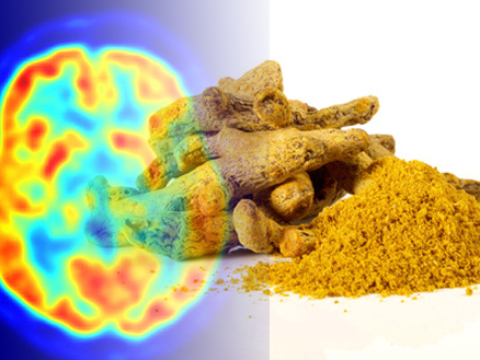 Indiawest: Turmeric May Have the Key to Alzheimer's Disease | Brain Plasticity | Scoop.it
