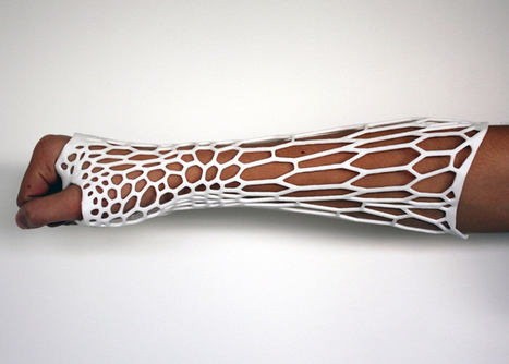 Cortex 3D-printed cast for fractured bones by Jake Evill | 3d Print | Scoop.it