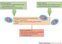 Ageing and the pathogenesis of osteoarthritis : Nature Reviews Rheumatology : Nature Publishing Group | Rheumatology-Rhumatologie | Scoop.it