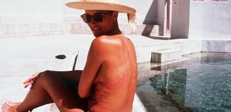 Malades du psoriasis : surveillez votre coeur - Sciencesetavenir.fr | 694028 | Scoop.it