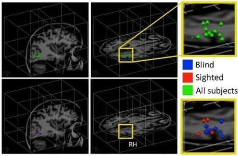 What Happens in the Brain When Blind People Learn to See With Sound | Social Foraging | Scoop.it