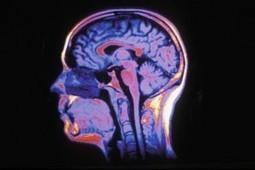 Les 4 cerveaux | Erwan MERENDET - Coaching et Thérapie Brève (PNL - Hypnose - Neurosciences) | Scoop.it