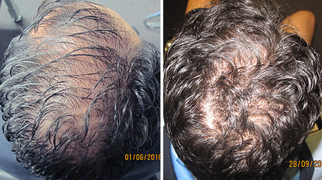 Patient Amazed At How Much Regrowth Ashley and Martin Treatment Provides | Hair Regrowth | Scoop.it