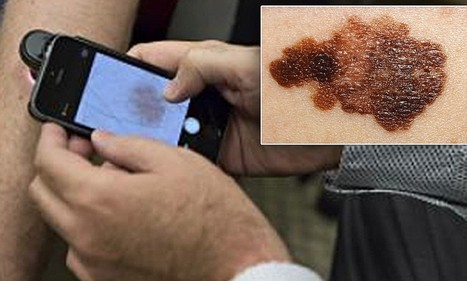 iPhone App That Detects Skin Cancer | Cancer Survivorship | Scoop.it