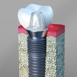 Implant Dentistry at Stuart - Francis J DuCoin DMD | Francis J. DuCoin DMD | Scoop.it