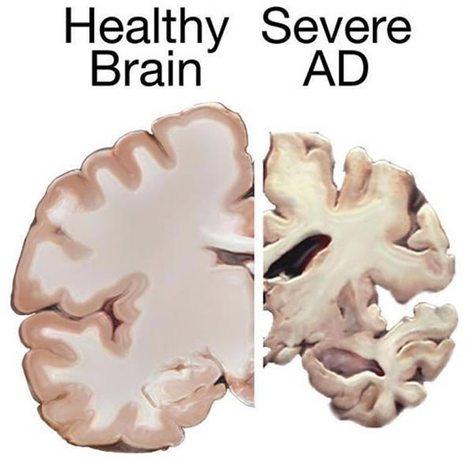 Resveratrol Appears to Stabilize Alzheimer's Disease Biomarker   Neuroscience News   Vitae Herbae   Scoop.it