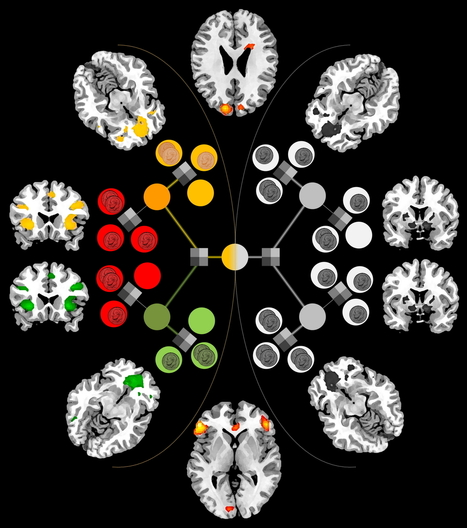 Researchers ID a brain mechanism that weighs decisions   Visual Heuristics   Scoop.it