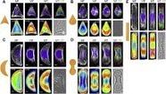 Geometric control of vimentin intermediate filaments | Micropatterns | Scoop.it
