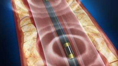 Shockwave Medical's Lithoplasty system gets FDA approval to treat calcified PAD - Medical Devices Business Review | Osteoporosis New drugs Review | Scoop.it
