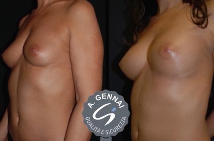 Lipofilling del seno | Chirurgia Plastica News | Scoop.it