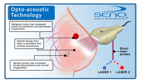 Seno Imagio Opto-Acoustic Breast Cancer Imaging System Cleared in Europe | Digitized Health | Scoop.it