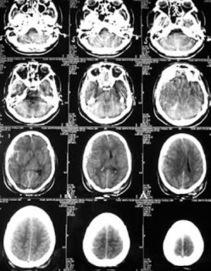 Técnicas de estudio para el cerebro | Métodos de investigación funcional del cerebro | Scoop.it
