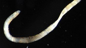 Worms and mites burrow into coal seam gas plans - ABC New England North West NSW - Australian Broadcasting Corporation | Sustain Our Earth | Scoop.it