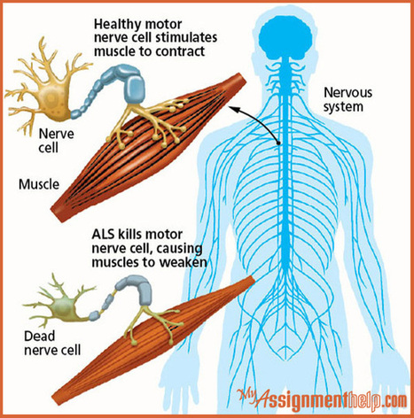 Things You Should Know About Amyotrophic Lateral Sclerosis (ALS) – A Nerve Disease with Extreme Effects : Assignment Help | My Assignment Help Info : Review and Subjects | Scoop.it