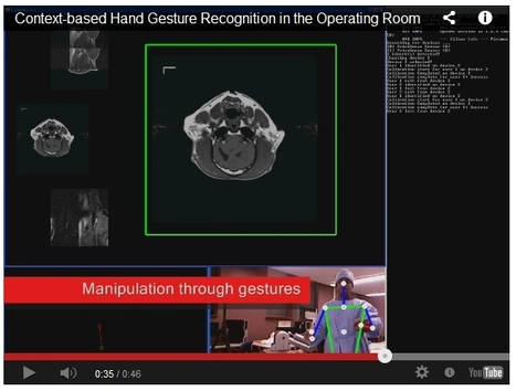 Surgeons may use hand gestures to manipulate MRI images in OR | Medical Engineering = MEDINEERING | Scoop.it