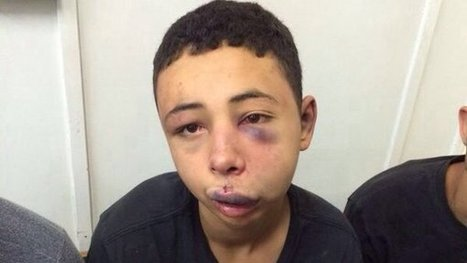 Beating of Palestinian-American Boy Caught on Video | Human Rights Issues: The Latest News | Scoop.it
