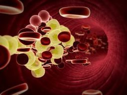 LDL cholesterol variability associated with declining cognitive performance in old0@er adults: Study | Cardiovascular Disease: PHARMACO-THERAPY | Scoop.it