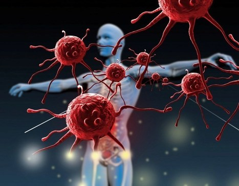 Fighting cancer with the help of someone else's immune cells - TMF™ - Breaking Medical News | Interview Tips for High School Students | Scoop.it