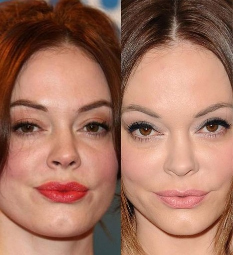 What Happened To Rose McGowan's Face? Is it plastic surgery? | Celebrity Plastic Surgery | Scoop.it