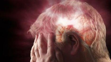 Bilingual skills enhance stroke recovery, study finds - BBC News | Angelika's German Magazine | Scoop.it