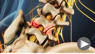 Osteoarthritis of the Spine | Rheumatology-Rhumatologie | Scoop.it