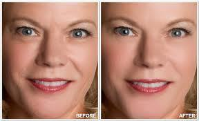 Liven up the production of collagen | Dramatic results quickly | Scoop.it