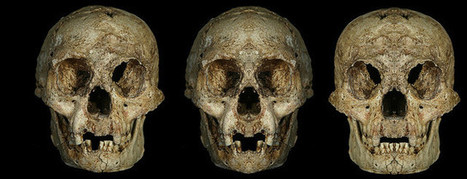 """Flores bones show features of Down syndrome, not a new """"hobbit"""" human 
