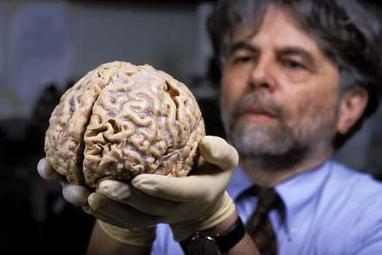Como Afecta El Alzheimer Al Cerebro - Como Revertir el Alzheimer | Tercera edad. Alzheimer | Scoop.it