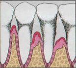 Periodontal Disease   Adam Scott   Scoop.it