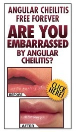 Who Suffers with Angular Cheilitis? | How to Cure Angular Cheilitis | Who Suffers with Angular Cheilitis? | Scoop.it