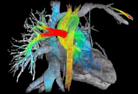 ViosWorks MRI Software Visualizes Blood Flow In and Around Heart (VIDEO) | Organ Donation & Transplant Matters Resources | Scoop.it