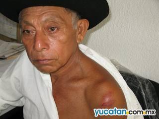 Tortura policíaca en Peto - Diario de Yucatán | The Fight Against Torture | Scoop.it
