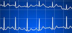 Optimiser le dépistage des troubles du rythme cardiaque après un accident vasculaire cérébral   CRAKKS   Scoop.it