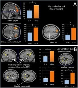 Brain Activation in Motor Sequence Learning Is Related to the Level of Native Cortical Excitability | Social Foraging | Scoop.it