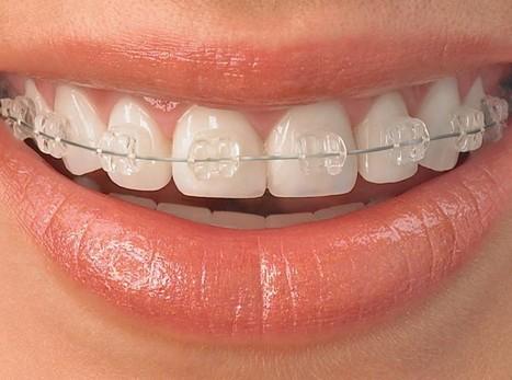 Les effets d'un appareil dentaire dans une vidéo en time-lapse | Fédération Française d'Orthodontie | Scoop.it
