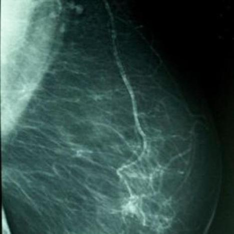 Fármaco detiene el crecimiento de las células del cáncer de mama | Cancer de mama | Scoop.it