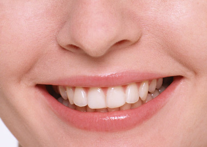 Protesi implantari a carico immediato | Studio Degidi Bologna | Blog Implantologia Dentale Degidi | Scoop.it