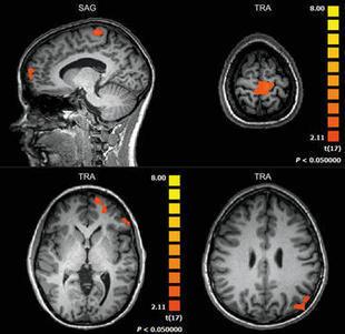 Identifican las zonas del cerebro que se activan con un sistema de realidad virtual / Noticias / SINC | Psiconeuroinmunología | Scoop.it