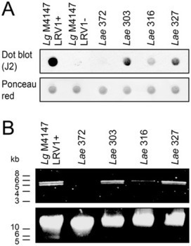 Leishmania aethiopica with Endosymbiontic dsRNA Virus Induce Pro-inflammatory Cytokine Response | Tropical diseases | Scoop.it