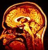 Scientists to Initiate Research on MND | The Beginning of War in Syria | Scoop.it