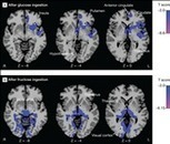 JAMA Network | JAMA | Effects of Fructose vs Glucose on Regional Cerebral Blood Flow in Brain Regions Involved With Appetite and Reward PathwaysFructose Consumption and Weight Gain | Upsetment | Scoop.it